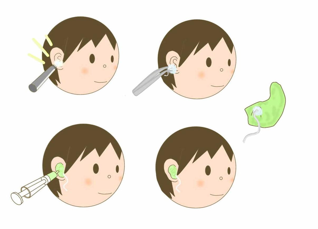 耳型採取②